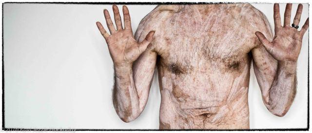 self portrait rash and lotion prison